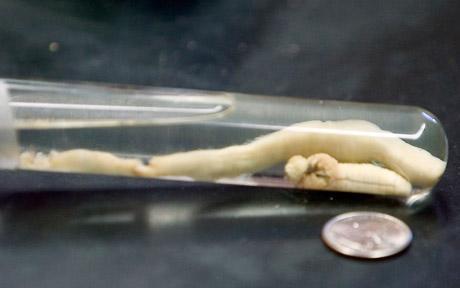 Esta escurridiza y desconocida lombriz escupe a sus presas